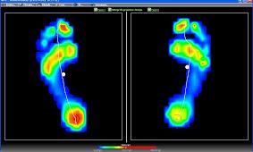 analisi posturale del piede studio balance livorno